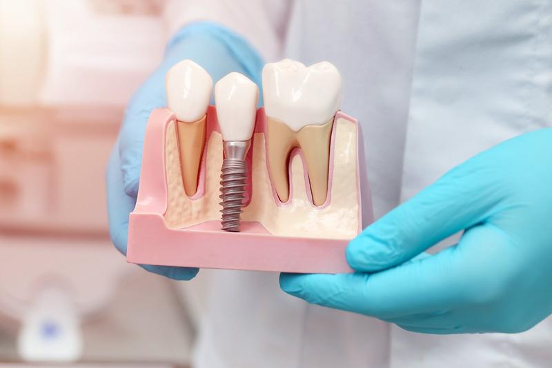 Doctor in scrubs holding a single dental implant model
